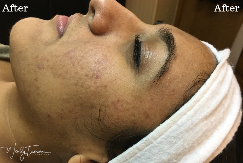 ethnic skin acne clearing