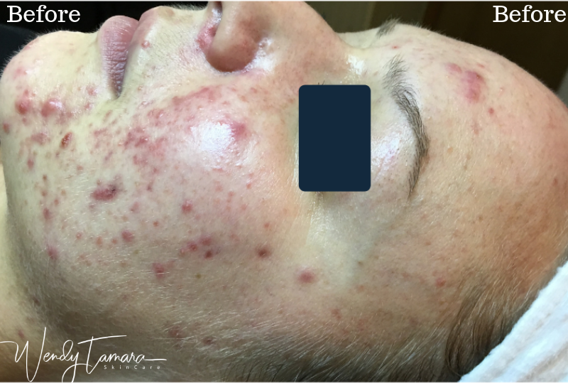 cystic acne clearing no medication