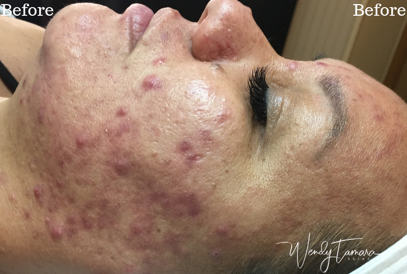 cystic acne clearing