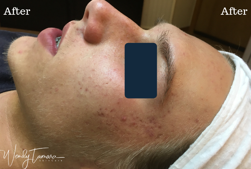 male hormonal acne clearing
