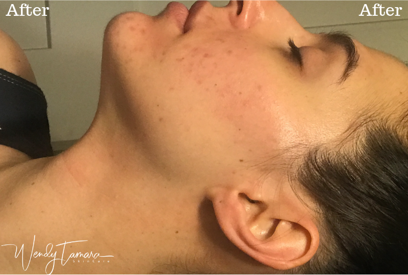 after acne treatment olympia