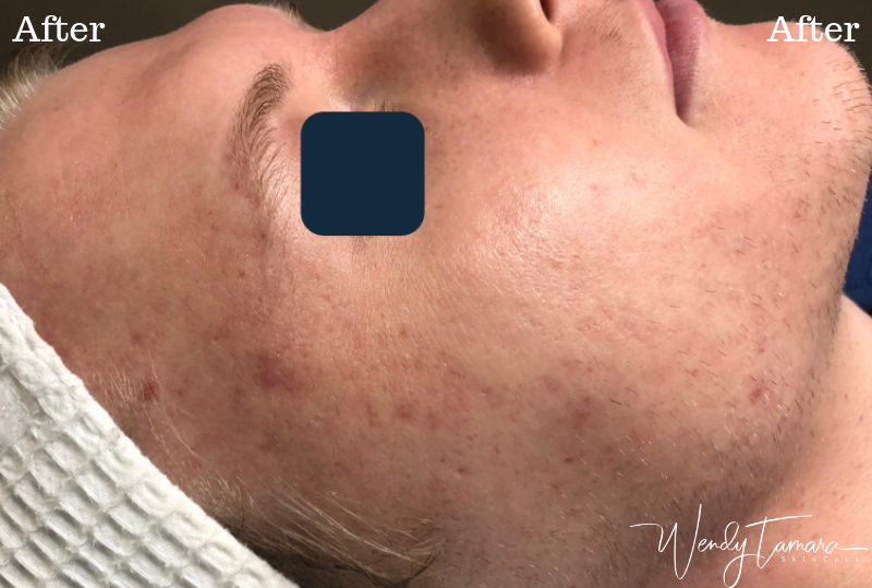 adult acne clearing olympia