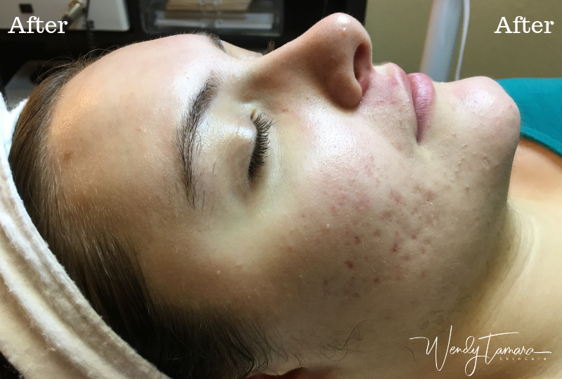 female hormonal acne clearing