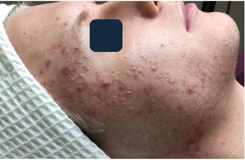 acne program olympia