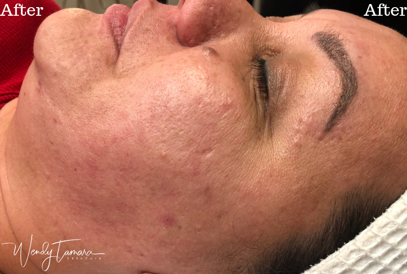 cystic acne clearing olympia