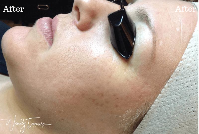 acne safe skincare olympia